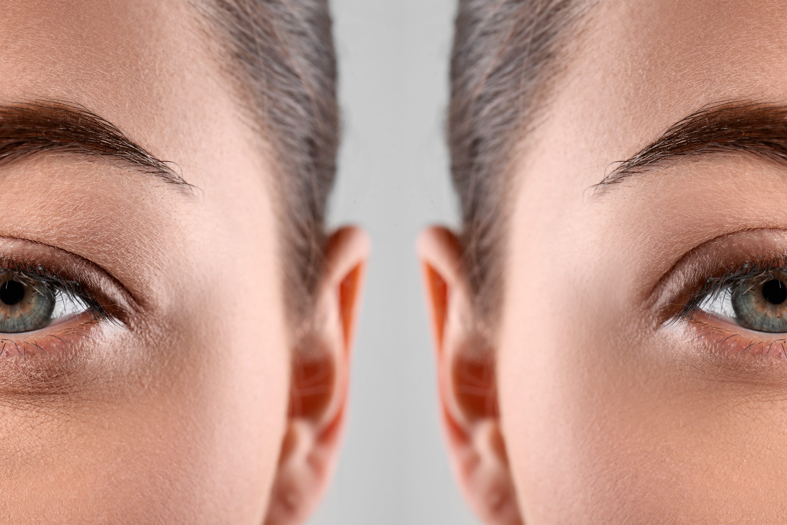Woman before and after blepharoplasty procedure, closeup. Cosmet
