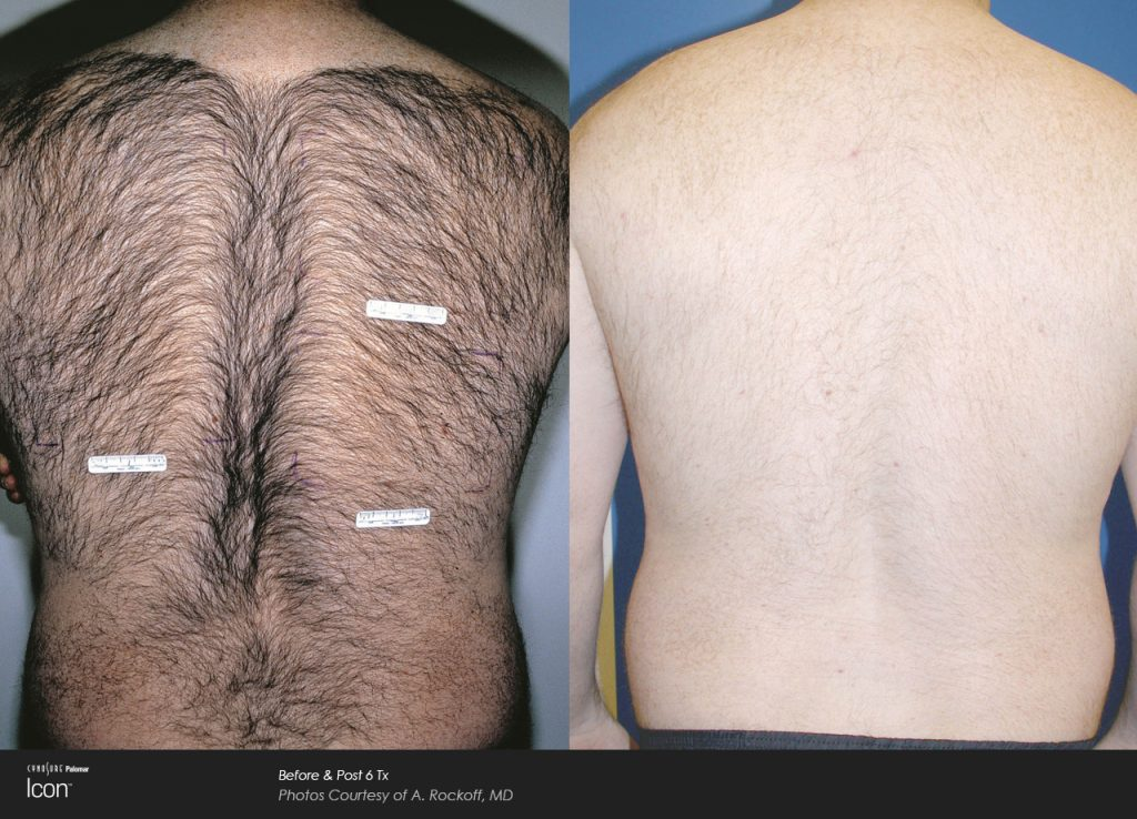 Hair-Removal-Before-&-After-Photo-1