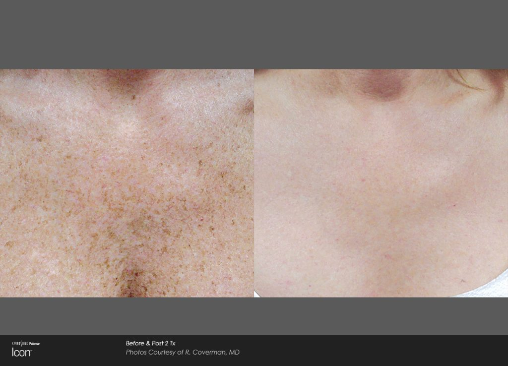 Skin-Revitalization-Before-&-After-Photo-7