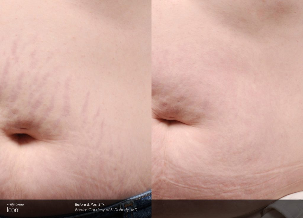 Stretch-Mark-Before-&-After-4_0